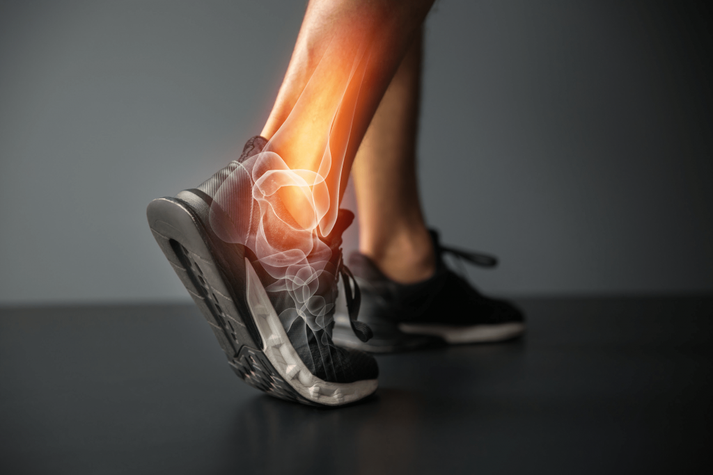 Causes of Poor Muscle Recovery