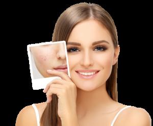 Do acne pills really work
