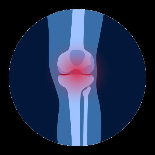 Easing osteoarthritis symptoms